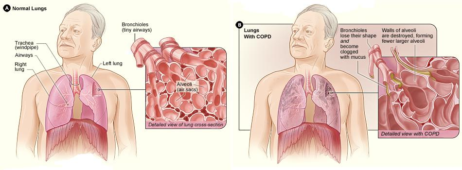 Normal Lungs versus COPD Lungs