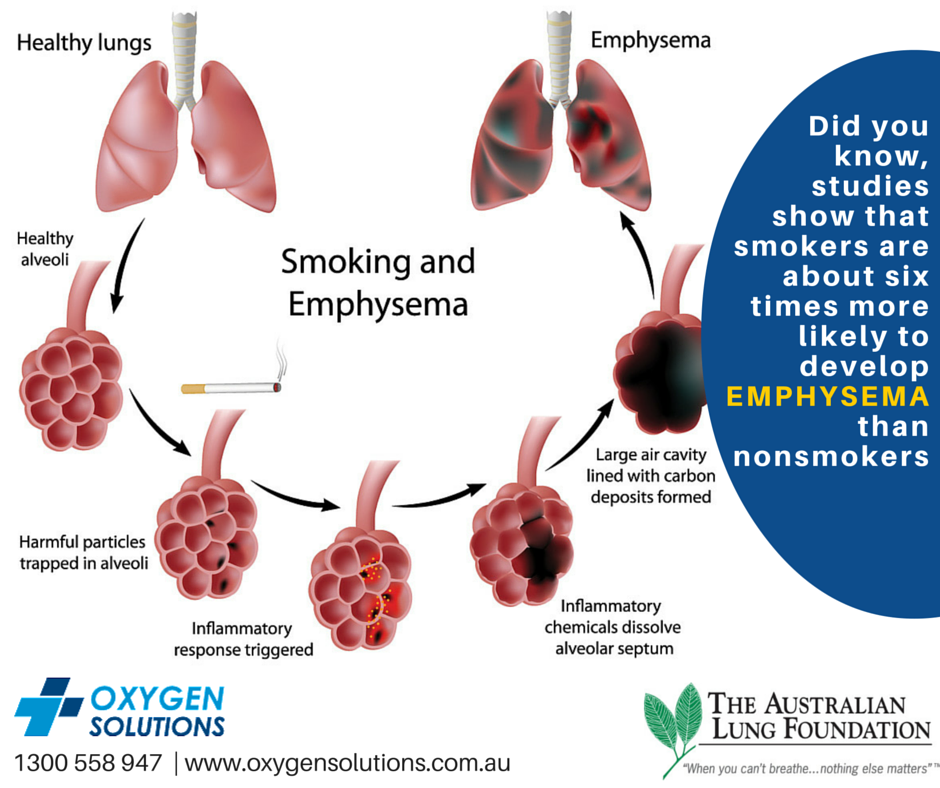 Emphysema COPD Lungs  Smoking Causes